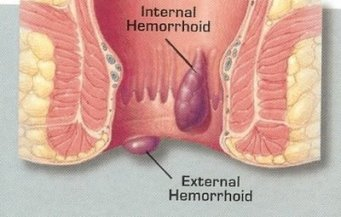 internal26eksternalhemoroid